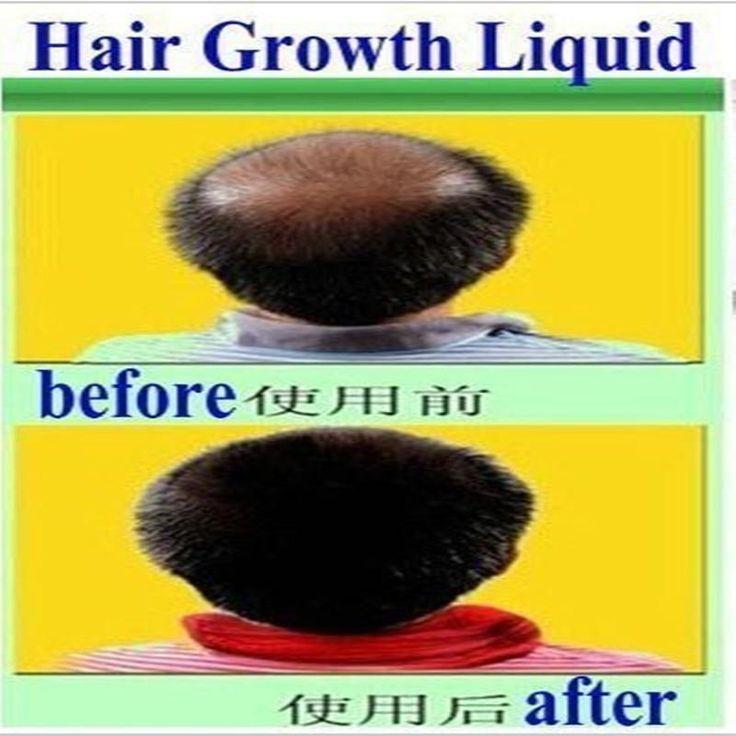 [Visit to Buy] Promotions!!!Hair Growth anti Hair Loss Liquid 20ml dense hair fast sunburst hair growth grow invalid refund alopecia #Advertisement