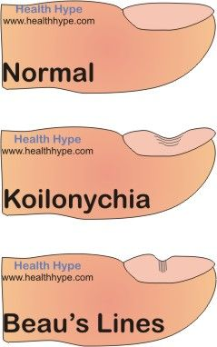 koilonychia vs beau's lines (Beaus lines caused by  various health problems including Hypercalcemia)