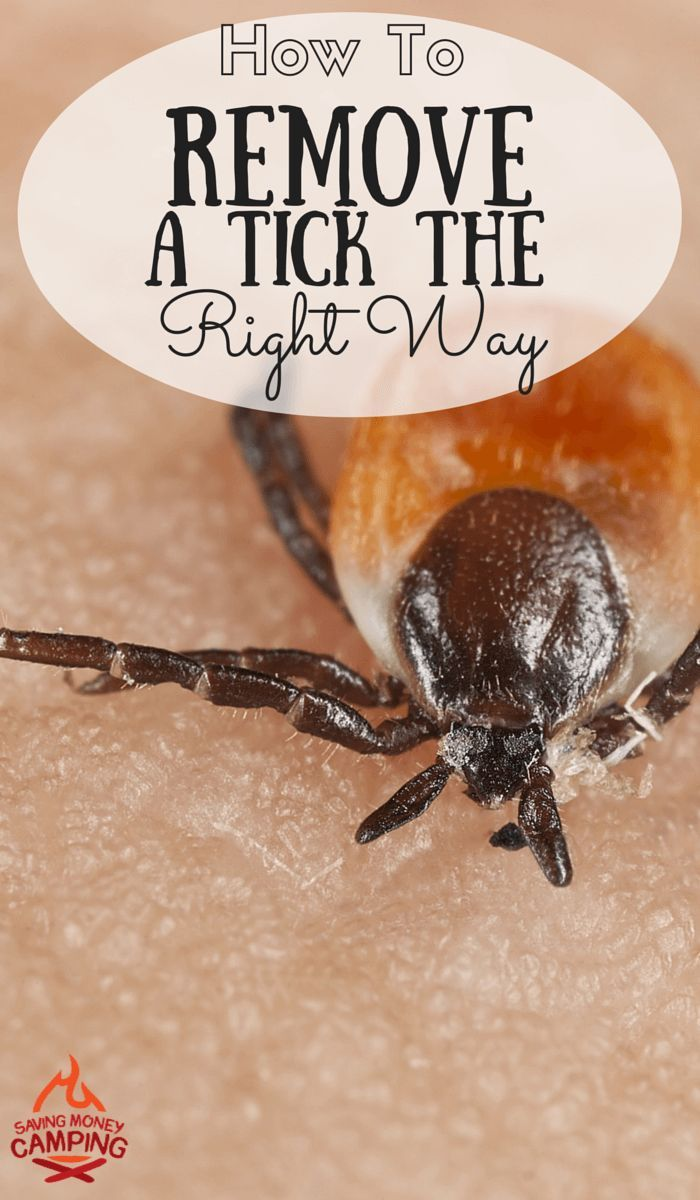 Do you know how to remove a tick the right way? Most people don't! http://www.savingmoneycamping.com/how-to-remove-a-tick-the-correct-way/