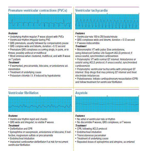 PVCs, Ventricular Tachy, Ventricular Fibrillation, Asystole
