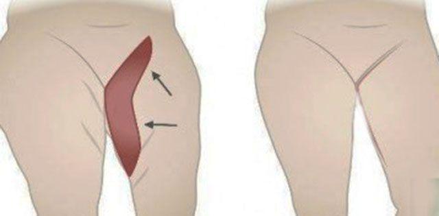 A plusz kilók a legtöbb nő számára lelki gyötrelmet okoznak. Különösen igaz ez abban az esetben, ha a zsír a comb belső részére rakódik rá.…