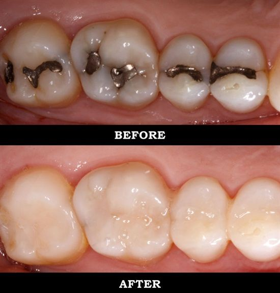 Dentaltown - Tooth-Colored Fillings vs. Amalgam Fillings. Existing fillings sometimes need to be replaced due to wear, chipping, or cracking. Many people use this opportunity to replace silver amalgam fillings with tooth-colored composites. Their reasons may be aesthetic or concern about amalgam fillings, which contain mercury. The American Dental Association asserts that the mercury in amalgam combines with other metals to render it safe for use in filling teeth.