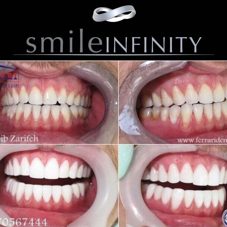 24 Best Images About Hollywood Smile Beirut On Pinterest