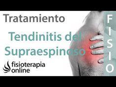 Tendinitis del supraespinoso - Tratamiento con ejercicios, automasajes y estiramientos - YouTube