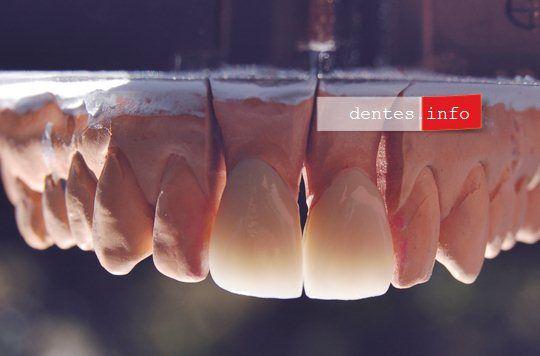 Coronas dentales de porcelana tipo Procera Alumina