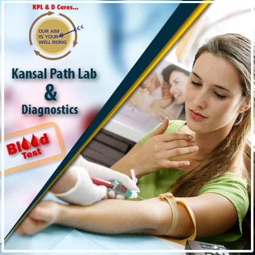 #KansalPathLab & diagnostics is the best #DiagnosticCenter in Yamuna vihar #Delhi. --> Blood Test --> Thyroid Test --> C-Reactive Protein Test --> HDL Cholesterol Test --> Homo-cysteine Test --> Testosterone Blood Test --> Blood count test --> Health Packages --> Full body checkup --> Blood test for diabetes Contact on - +91-9999265646