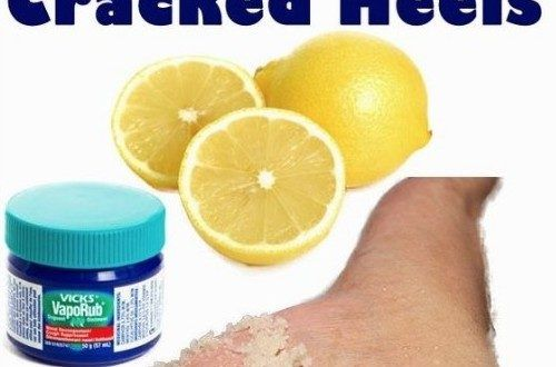 DIY home remedy to heal cracked heels Cracked Heels not only affects the beauty of your foot but also prove to be very painful in intensive cases.These cracks are generally caused by insufficient moisture.The most common reasons for Heel Fissures are mainly walking barefooted excessive hot showers prolonged standing climate age medical conditions etc. Here we have listed few of the best