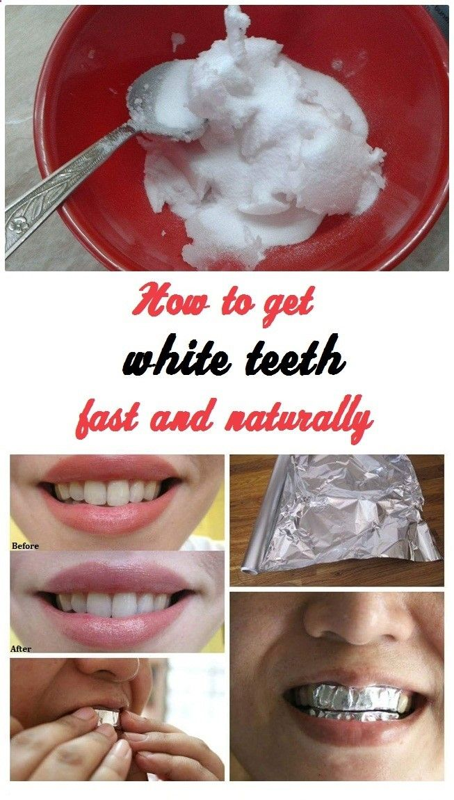 For this you need two small pieces of aluminum foil, 2 teaspoons of baking soda and 2 teaspoons of toothpaste. Mix good the baking soda and toothpaste, then lubricate pieces of aluminum with solution obtained. The bands should be made with natural bleach, then your teeth for 30 minutes. Once you get off, wash your teeth and enjoy the effects achieved