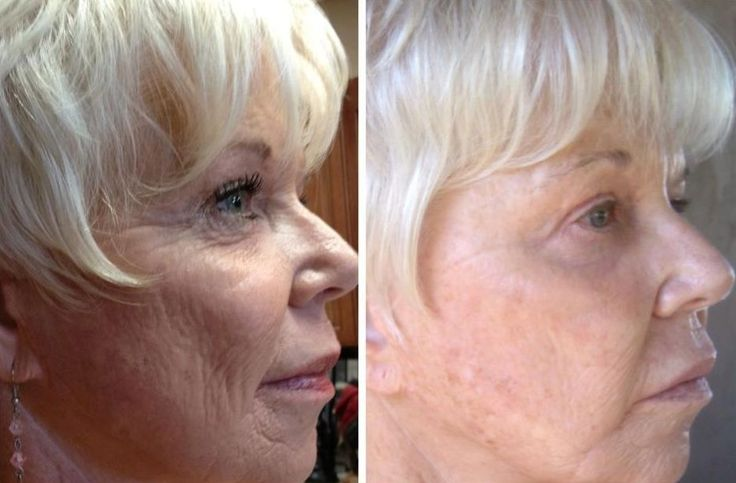 The Face Manipulation Gymnastics Guide For Ladies And Men To Obtain A Non Surgical Facelift