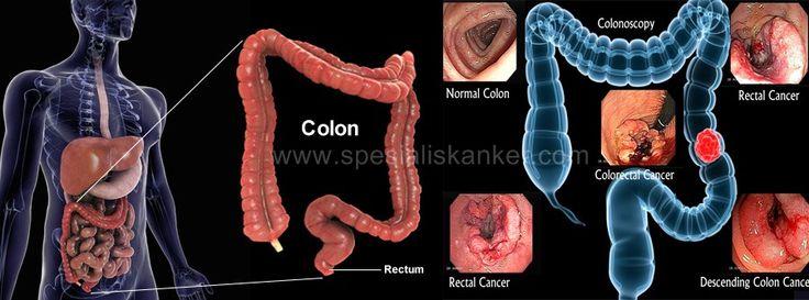 Kanker Colorectal  Kanker kolorektal adalah kanker usus besar dan rektum, yang merupakan bagian terakhir dari saluran pencernaan. Ketika makanan memasuki usus besar, air diserap dan sisa makanan diubah menjadi limbah (tinja) oleh bakteri. Rektum adalah bagian terminal dari usus besar yang menyimpan kotoran sebelum dikeluarkan melalui anus. Polip dapat terbentuk pada dinding bagian dalam usus besar dan rektum. Ini adalah benjolan jinak yang cukup umum pada orang di atas usia 50. Namun…
