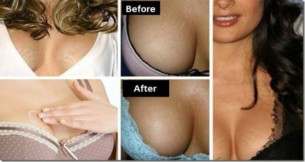 REMOVE WHITE STRETCH MARKS FROM YOUR BREASTS WITH THESE GREAT HOME REMEDIES - http://nifyhealth.com/remove-white-stretch-marks-from-your-breasts-with-these-great-home-remedies/