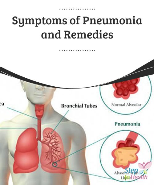 Symptoms of #Pneumonia and Remedies   Learn about some of the common #symptoms of pneumonia and #natural #remedies for it in this article.