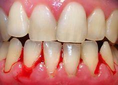 Salud al Día: ¿Cómo puedes eliminar la gingivitis de manera natu...