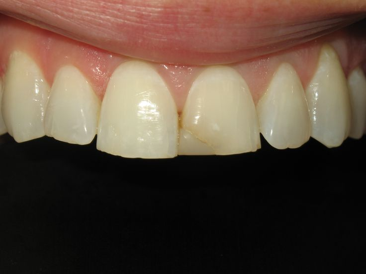 Can I Whiten My Teeth if I've had Teeth Bonding Done? - Tooth bonding is done with...