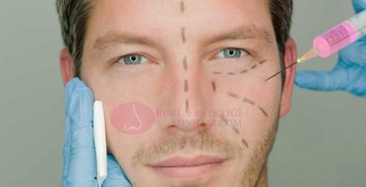 Erkek Burun Estetiği  Erkek burun estetiği, son dönemlerde oldukça fazla yapılıyor. Estetik operasyonu yaptırmak isteyen bir bireyin dikkat etmesi gereken en önemli nokta, işlemi yapacak olan cerrahtır. İyi bir cerrah ile çalışılmadığı takdirde burunda ileriki dönemlerde farklı komplikasyonlar meydana gelebilir veya ameliyat istediğimiz görünümü bize kazandırmayabilir... >>> http://www.burunestetigisonrasi.com/erkek-burun-estetigi  #erkekburunestetiği #erkekburunestetik…