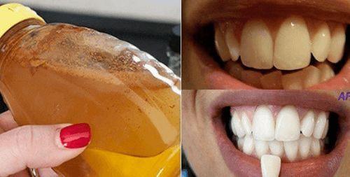 Sbiancare i denti in modo naturale con l'aceto di mele
