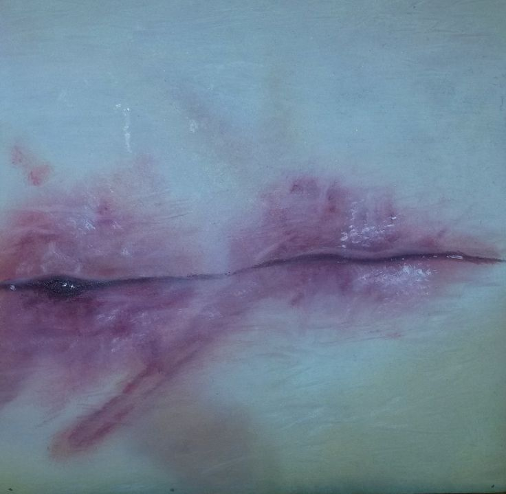 Ilandi Barkhuizen. 2014. Oil on Wooden canvas. Wounds series