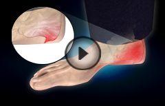 Heel Spur or Calcaneal Spur : Treatment, Prevention