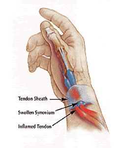 Treating De Quervain's tendonitis