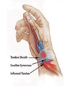 Forearm Tendonitis Natural Treatment