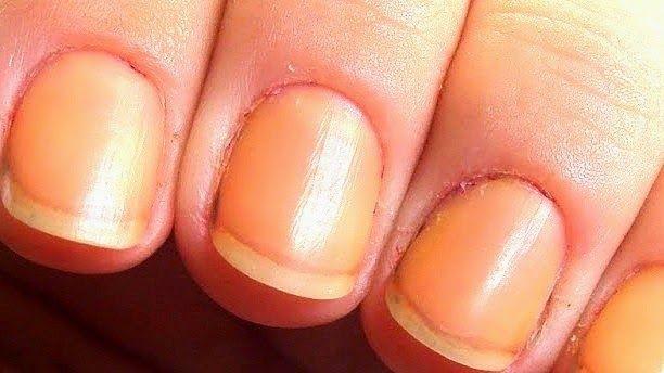 Portal Dicas e Truques: Como clarear unhas amareladas por ação de esmalte