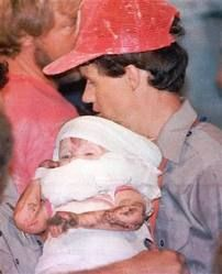 "Baby Jessica~ ""Jessica McClure Morales (born March 26, 1986) became famous at the age of 18 months after falling into a well in the backyard of 3309 Tanner Dr. Midland, Texas, on October 14, 1987. Between that day and October 16, rescuers worked for 58 hours to free ""Baby Jessica"" from the eight-inch-wide well casing 22 feet (6.7 metres) below the ground."" ~I remember watching the live footage on TV just hoping the little one would make it out alive!"