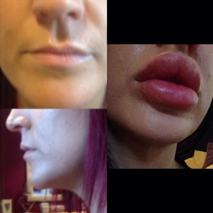 17 best images about lips enhancement on pinterest lip augmentation lip enhancer and kylie jenner. Black Bedroom Furniture Sets. Home Design Ideas