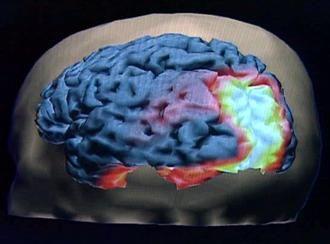 Die Hungerzentrale im Gehirn wird aktiv