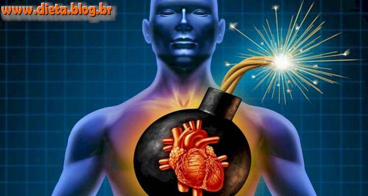 ATAQUE CARDÍACO Um ataque cardíacotambém conhecido como um infartodo miocárdio (MI) ou oclusão coronária, trombose coronária. Geralmente ocorre quando o suprimento de sangue para o coração é bloqueado de repente devido ao bloqueio completo...