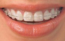 clear teeth braces ideas