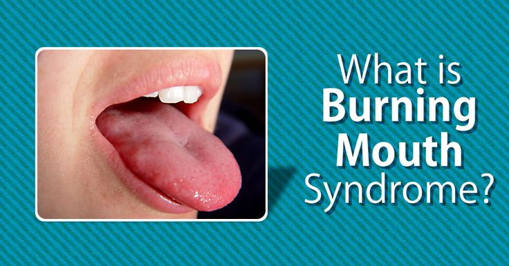 The burning mouth syndrome is a painful, complex condition