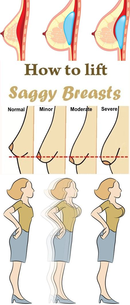 How to lift saggy breasts