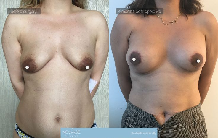 Mastopexy & Lifting performed by Ozge Ergun, MD- The result of 4 months  Natural breast results can be obtained with implants  /// For more information 📲 WhatsApp: 0090543 470 47 09 ///  #mastopexy #PlasticSurgery #earpinning #Aesthetics #beauty #estética #cirugíaplástica ‬#estetica #chirurgiaplastica #Ästhetische #plastischeChirurgie #chirurgieplastique #Schönheit #ринопластика #breast #Busen #brust #الثدي #réductiondepoitrine #Brustverminderung #breastsurgery #BreastAugmentation