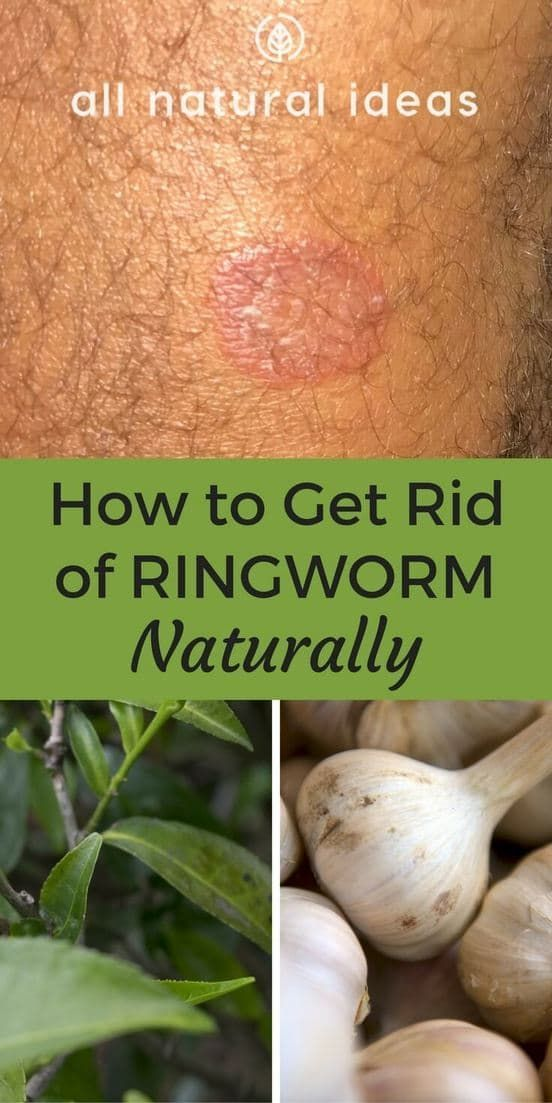 how to get rid of ringworm Explore more on how to get rid of ringworm using the various treatment and home remedies you will also get enlightened on how to prevent ringworms and its spread.