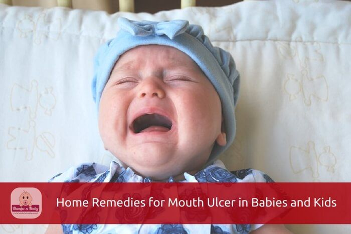 Looking for home remedies for mouth ulcer in babies? Here are the 13 safe and effective remedies for mouth ulcer in babies and kids.