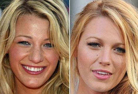 Blake Lively nose job before and after photos 4 Blake Lively Nose Job before and after photos leaked! Find more http://slimcelebrity.com/plastic-surgery/blake-lively-nose-job/