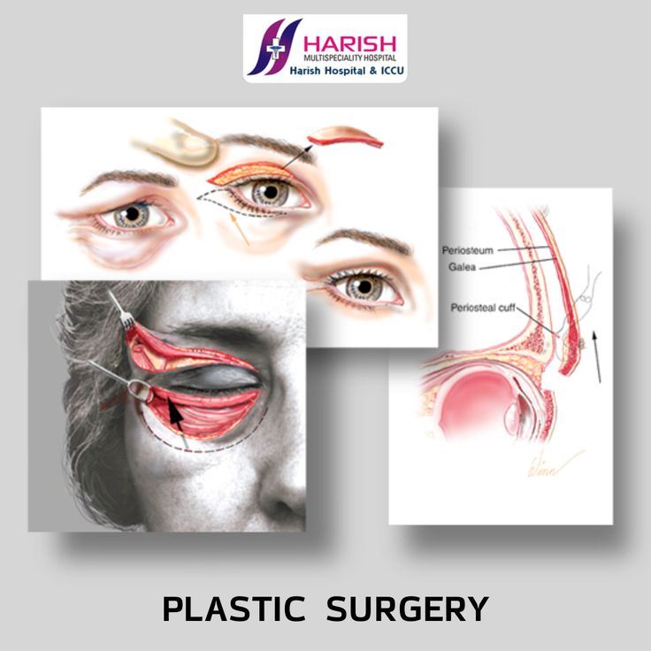 Plastic surgery is a surgical specialty involving the restoration, reconstruction, or alteration of the human body. It includes cosmetic or aesthetic surgery, reconstructive surgery, craniofacial surgery, hand surgery, microsurgery, and the treatment of burns #Plastic #surgery #humanbody #Burnsurgery #Hand #surgery  Visit- http://www.harishhospital.com/cosmetic-surgery.html 022 27707751