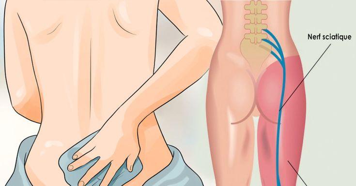 Le nerf sciatique est l'un des nerfs les plus grandsdans lecorps. Il commenceen bas de la colonne et traverse les fesses et descend par le membre inférieurjusqu'aux pieds. Ce nerf assure le mouvement, les sensations et la force aux jambes. Environ40% de la population mondiale auraune sciatique à un moment donné de leur vie. La …