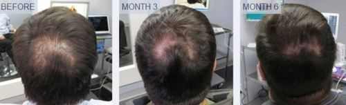 Is your hair hair thinning? Are starting to go bald? Want to grow your own hair back like this guy? Check out scalp med. A very easy thinning hair solution to use.