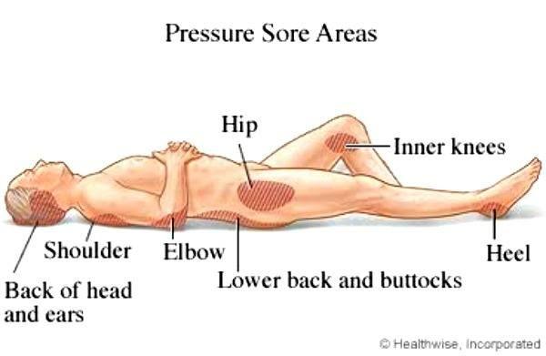 5 Tricks To Prevent Pressure Sores Pressure Ulcer Bed Sores