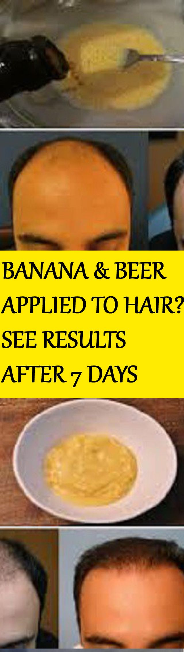 HE MIXED BANANA AND BEER AND APPLIED IT TO HIS HAIR – THE RESULTS AFTER 7 DAYS…UNBELIEVABLE!