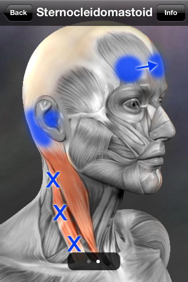 Naast migraine/hoofdpijn mogelijk ook oorsuizen en duizeligheid. Overmatig aanmaak van oorsmeer of verstopt gevoelen en of gehoorverlies zijn ook uitwerkingen die deze sternocleidomastiodeus Triggerpoints.