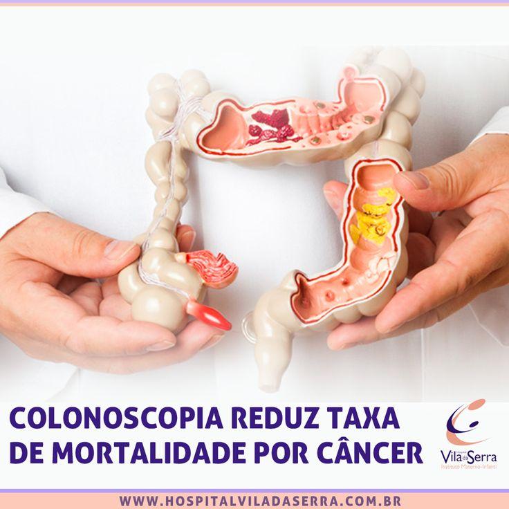 Saiba quando a colonoscopia é recomendada http://bit.ly/1mymNQe  A Endovila - Serviço de Endoscopia do Hospital Vila da Serra realiza a colonoscopia e outros procedimentos endoscópicos. Mais informações: (31)3228-8158.