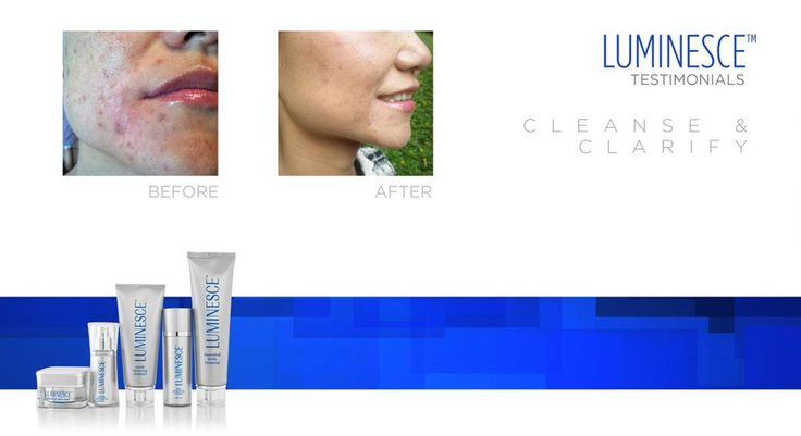 This retired dermatologist received amazing results with the Luminesce serum!