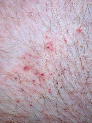 Learning to identify bug bites or stings will help you get the proper treatment.