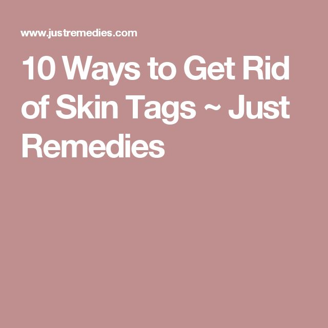 how to get rid of small skin tags