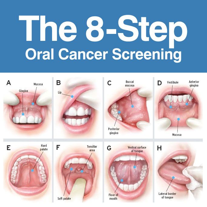 What are the steps to take to be an succesful dentist?