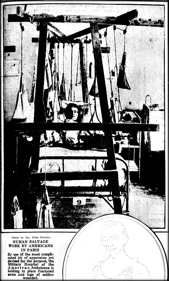 """WWI, 5 Sept 1917; """"Human Salvage Work by Americans in Paris. Complicated apparatus is holding in place fractured arms and legs of soldier wounded."""" - Evening Public Ledger, Philadelphia"""