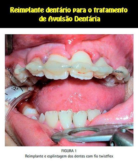 Reimplante dentário para o tratamento de Avulsão Dentária: relato de caso clínico   OVI Dental