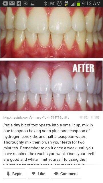 White teeth tips pinterest teeth remedies and makeup - Teeth cleaning tips ...